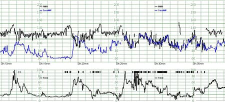 Philips fetal monitoring EUR paper speed
